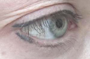 desine akis